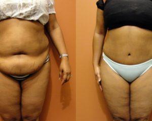 Cirurgia de Abdominoplastia – Antes e Depois