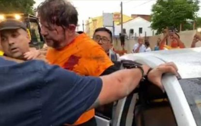 Senador Cid Gomes é baleado durante manifestação de PMs